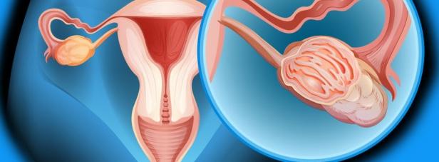 <p>Инвазивная гинекология</p>